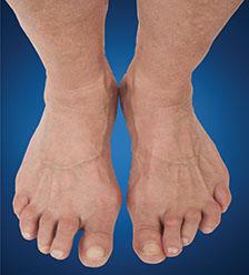 Arthritis-Arthritis-Deformity.jpg