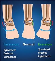 Sports-Ankle-Sprain.jpg