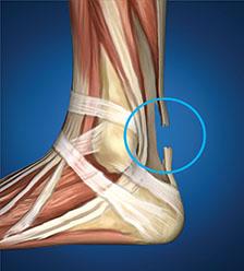 Arthritis-Achilles Tendonitis.jpg
