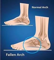 Disorders-Flatfoot.jpg